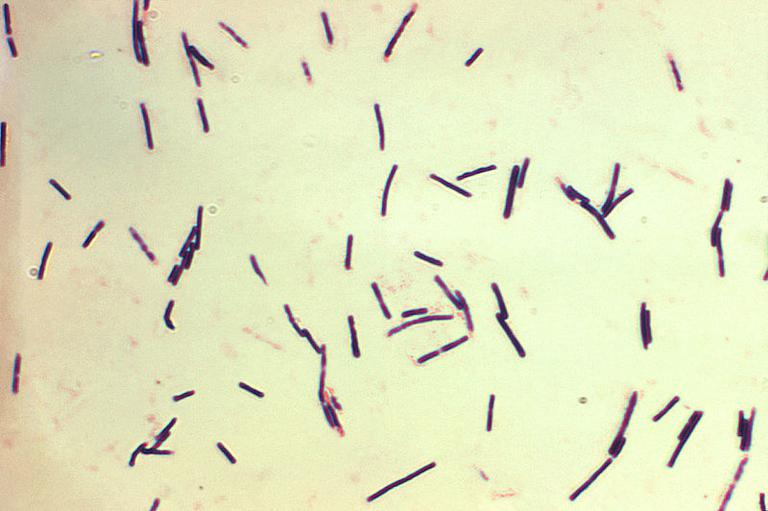 Gram stained clostridium perfringens, one of the agents of gas gangrene