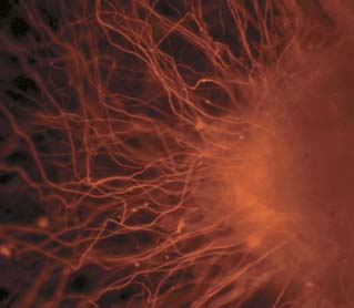 Neurons Derived from Embryonic Stem Cells