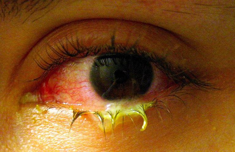An Eye With Bacterial Conjunctivitis. Note Yellow Discharge.