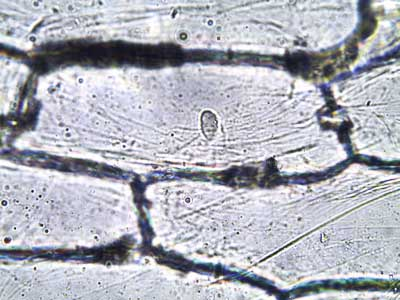 Onion Epidermis @ 400xTM Photo