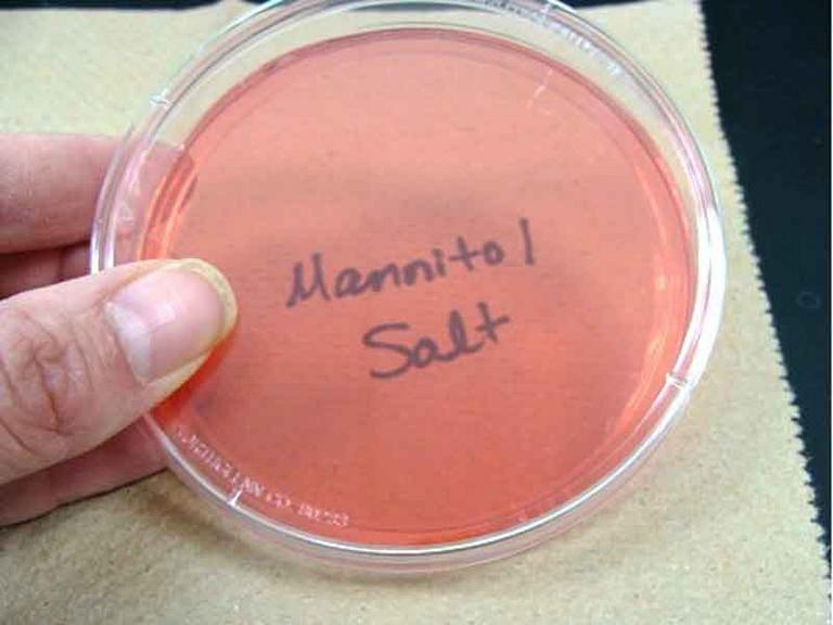 Photo of Sterile Mannitol Salt Agar