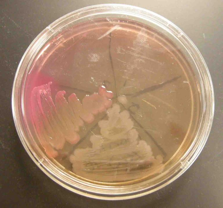 MacConkey's Agar inoculated with the following control samples (clockwise from top left): Staph aureus, Staph epi, sterile loop, Salmonella, E. coli.