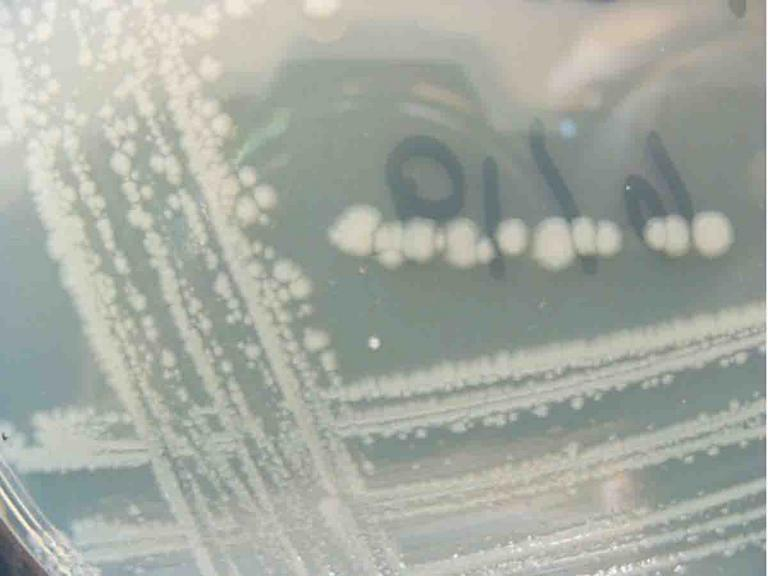 Close up of E. coli colonies on a streak plate of TSY agar.