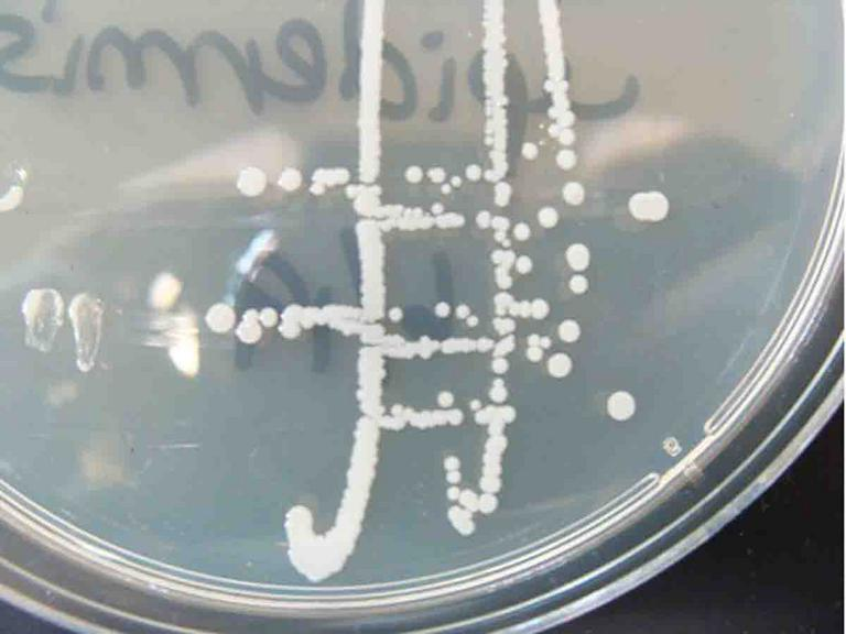 Photo of Bacterial Colonies of Staphylococcus on TSY Agar