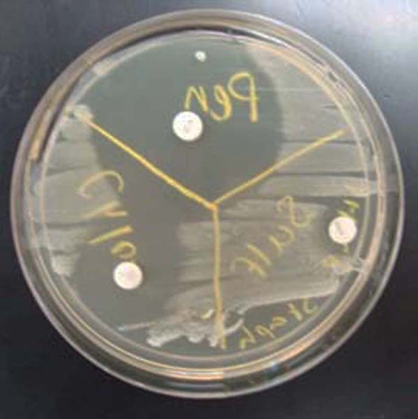 "TSY agar inoculated with Staphylococcus. Three antibiotic sensitivity disks appear on this medium: penicillin, sulfa, and ciprofloxacin (clockwise from top). Note the ""zone of inhibition"" around each antibiotic disk. The larger the zone of bacterial inhibition, the more effective the antibiotic is against the bacteria."