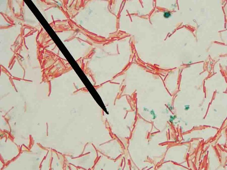 staining A gram stain is a test used to identify bacteria it is one of the most common ways to quickly diagnose bacterial infection in the body.