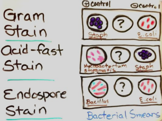 Diagram of bacterial controls used for Gram, Acid-fast and Endospore differential staining.