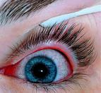 An Eye Infected With Viral Conjunctivitis