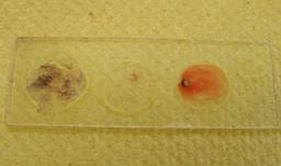 Gram stained slide, showing + & - bacterial controls on left and right circles of slide and unknown bacteria in center.
