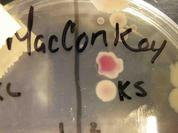 MacConkey's Agar growing Gram-negative bacteria; pink lactose fermenting bacterial colony above colorless non-lactose fermenting bacterial colony.