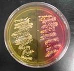 Mannitol Salt Agar with Pathogens 9left) and Normal Flora (right)