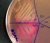 MacConkey's Agar with Lac- Salmonella on top and Lac+ E. coli on bottom