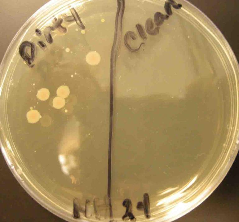 microbes petri dish experiment lab report Petri dishes are labelled on the bottom rather than on the lid write close to the edge of the bottom of the plate to preserve area to observe the plate after it has incubated labels usually include the organism name, type of agar, date, and the plater's name or initials.