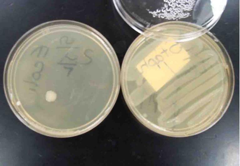 Microbiology Images Science Photographs From Science Prof