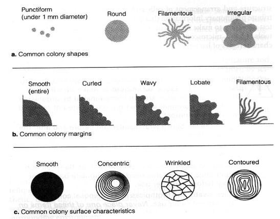 Bacterial Colony Morphology and Identification of Bacteria